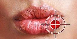 Як вилікувати герпес на губах за 1 день