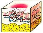 Macula inflammatoria 1