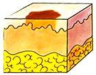 Macula hyperchromica